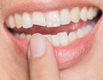 advice broken front tooth dentist Raleigh