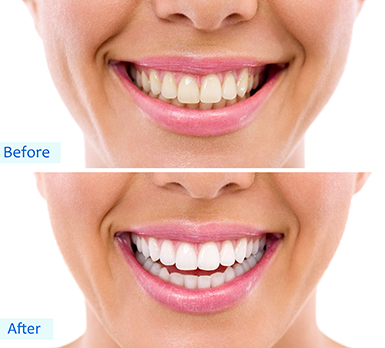 Teeth whitening Brier Creek